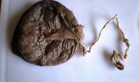 ¿Sabes qué es la placentofagia?